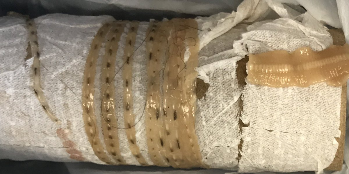 Man pulls 5-and-a-half foot tapeworm from his body; doctor suggests sushi to blame https://t.co/r1Uy1UpgZT https://t.co/VVbE4N0wNT