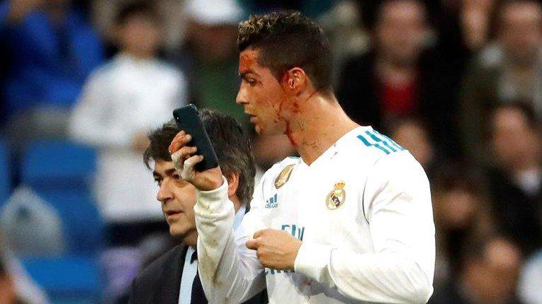 RT @TelenocheUy: Ronaldo solicitó un celular para ver una herida en pleno partido ► https://t.co/wbadYpGhYu https://t.co/2mstUVrzZL