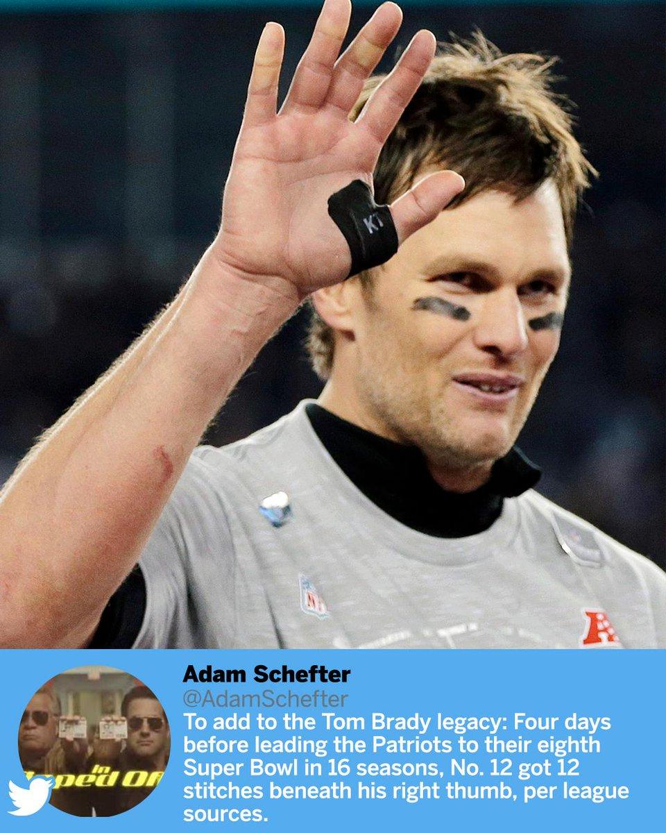 RT @SportsCenter: Tom Brady had 12 stitches in his throwing hand, per @AdamSchefter. https://t.co/QtgGh9tc9s