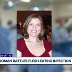 Valley woman hospitalized after being diagnosed with flesh-eating disease
