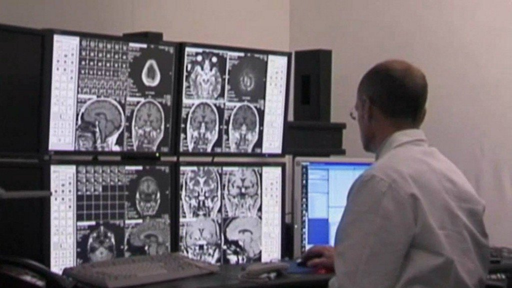 New stroke research, technology could help save lives