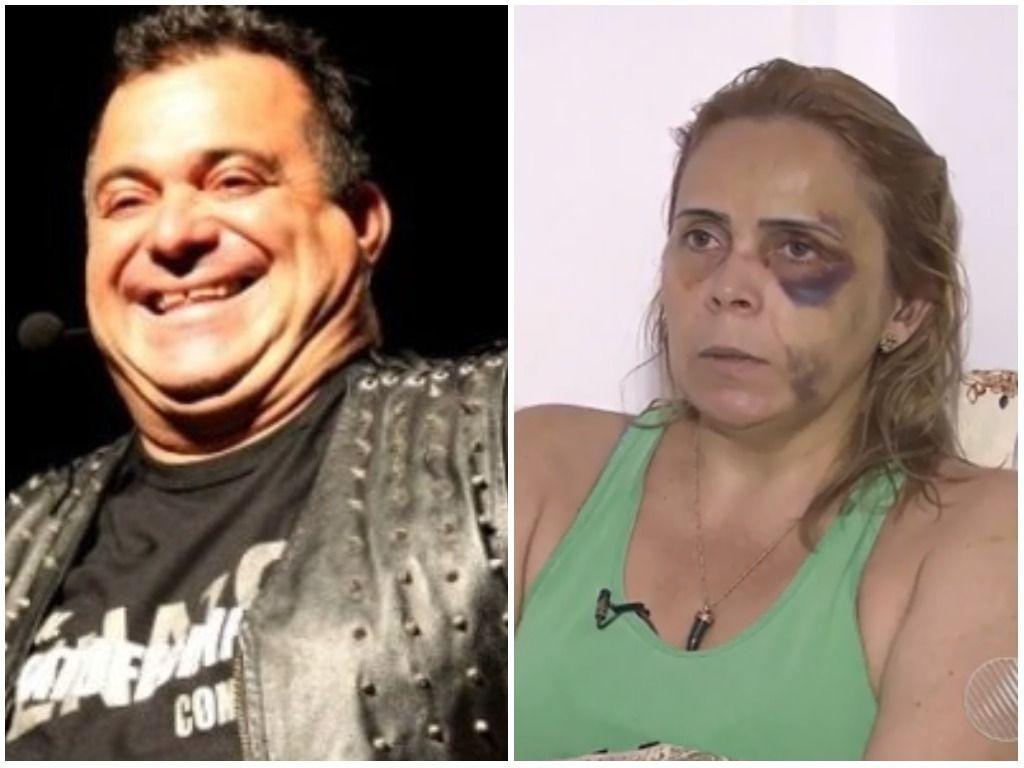 Agressao. Foto do site da BN Holofote que mostra Exnamorada de Renato Fechine o denuncia por agressão: 'Me deu um murro, me enforcou'