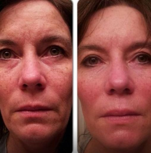 Facial Revitalization Gymnastics For Face And Youth Restoration...
