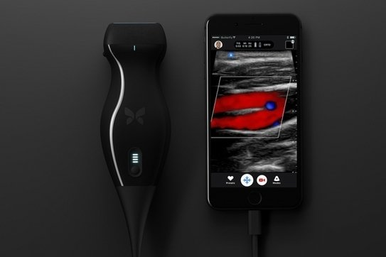 Low-cost, handheld scanner that generates clinical-quality ultrasounds on a...