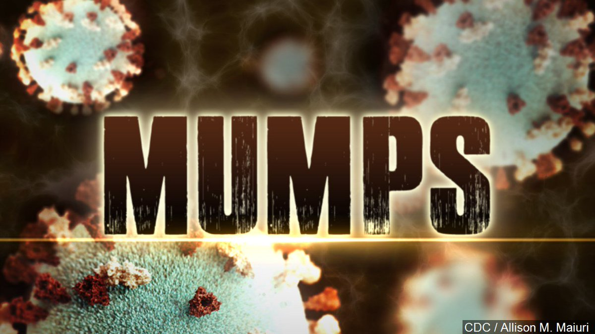 Mumps disease hits Juneau for first time in 20 years