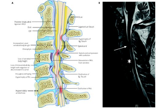 test Twitter Media - What features would prompt you to suspect degenerative cervical myelopathy in a patient? #BMJEducation explains why it is easily missed and what clinicians need to know: https://t.co/tyFsx84Hwp https://t.co/x5tteKS0tr