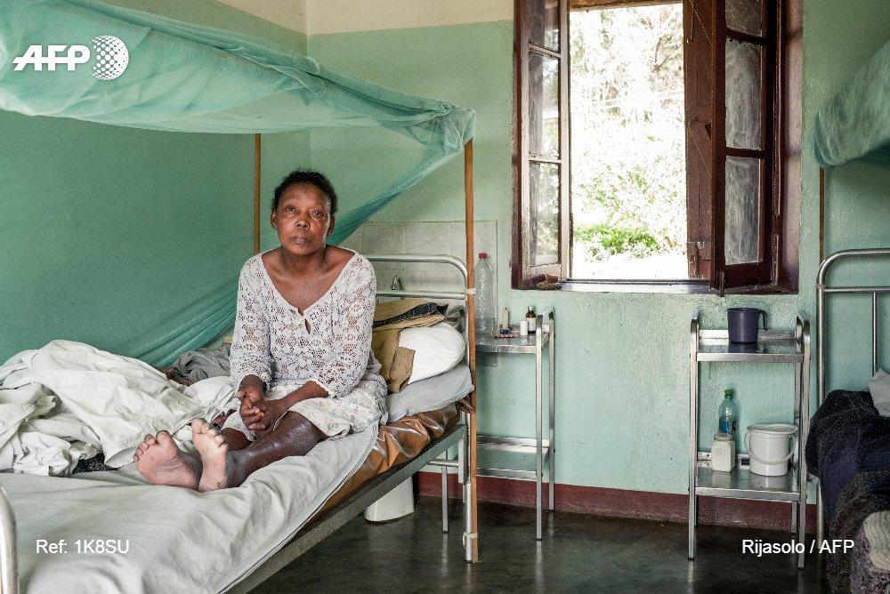 A Madagascar, les malades de la lèpre condamnés à vivre reclus