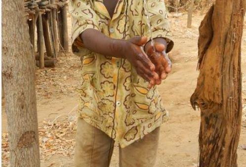 Cholera outbreak alert in Trans Nzoia
