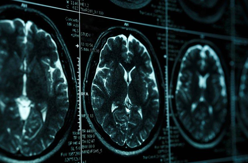 Brainscanner therapie