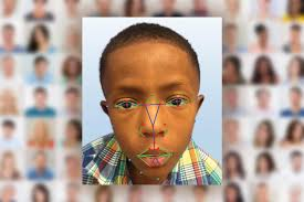test Twitter Media - Each year, 1 million children are born worldwide with a #genetic condition. Here's a look at facial analysis technology that is currently under development @childrenshealth to help diagnose genetic syndromes & #RareDiseases #statmadness2018 https://t.co/2rOJ2dDPMs https://t.co/Ftwe9CYxzH