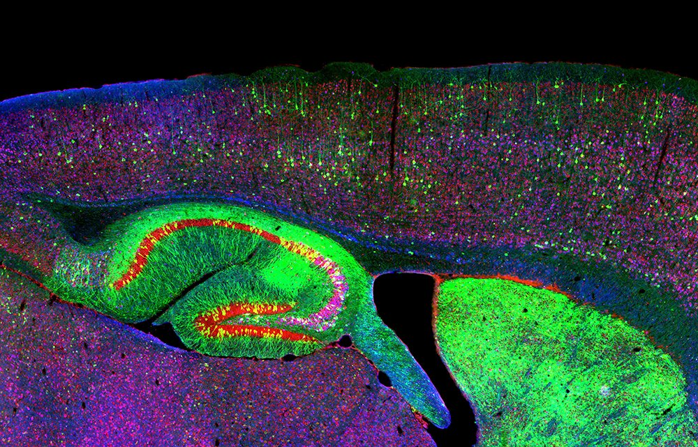 test Twitter Media - Are neurons added to the human #brain after birth? A controversial new study has #neuroscientist and biology prof @janicenaegele rethinking neuron research: https://t.co/ukDC06yPoE via @ConversationUS #FacultyFriday #SciFri https://t.co/o6TR5VdOMD