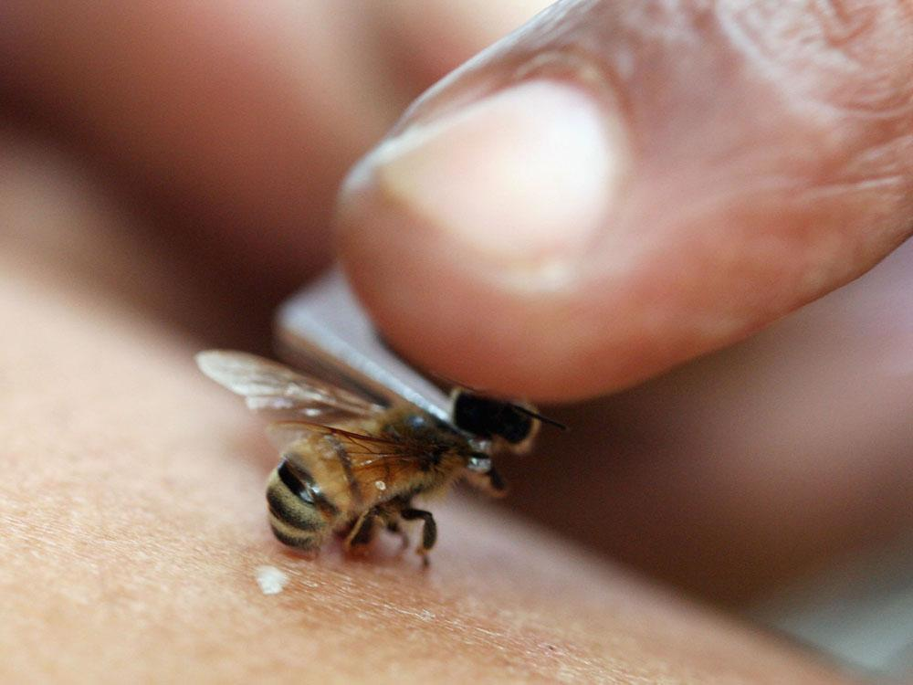 ICYMI - Woman dies after acupuncture using live bee stings instead of needles