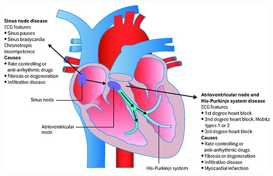 test Twitter Media - Have you had patients with a pacemaker in-situ develop symptoms of heart failure? How would you assess and manage them? #BMJEducation https://t.co/QLj1Q52WKb https://t.co/p8N2VKQTej