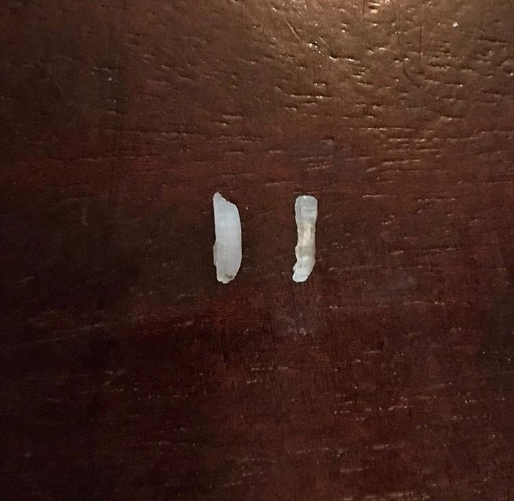 Grain of rice. Pinky toe nail. Can you tell which is which? #sponsored https://t.co/HNM4NNTFaT https://t.co/fpdFV27nyH