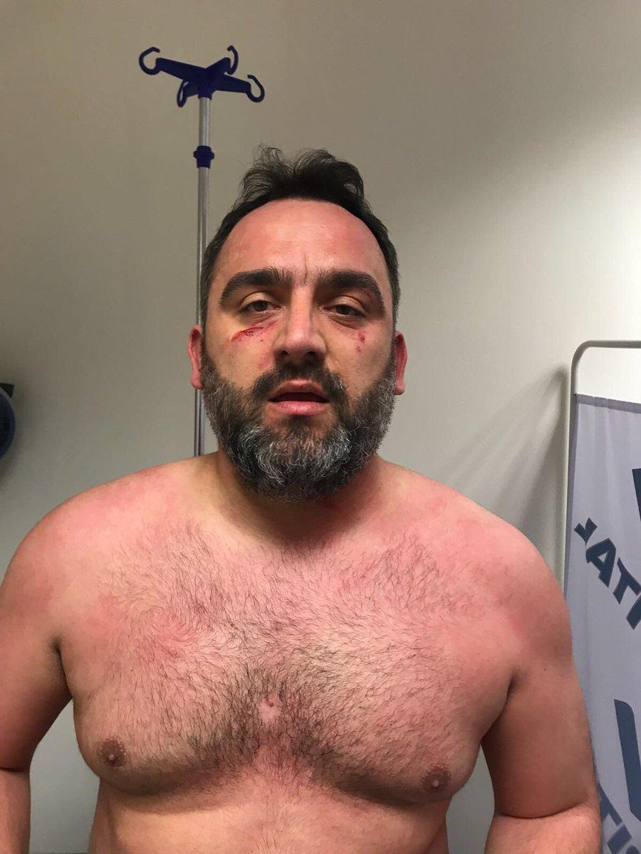 Beşiktaş İdari Menajer Yardımcısı Erdinç Gültekin'in, soyunma odası koridorlarında yaşanan olay sonrası son durumu....