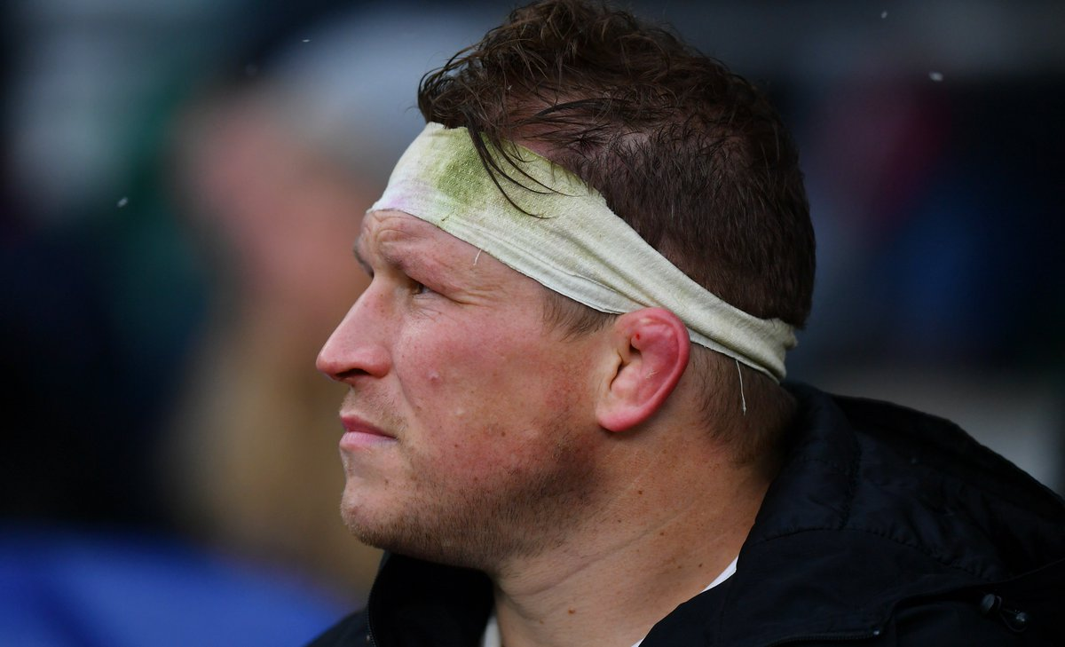 "test Twitter Media - ""He'll be fighting to get back as soon as he can."" England captain Dylan Hartley ""won't do anything stupid"" after his latest concussion setback, says team-mate Danny Care. Read 👉 https://t.co/YauScNWLlo https://t.co/GprDfA1ku4"