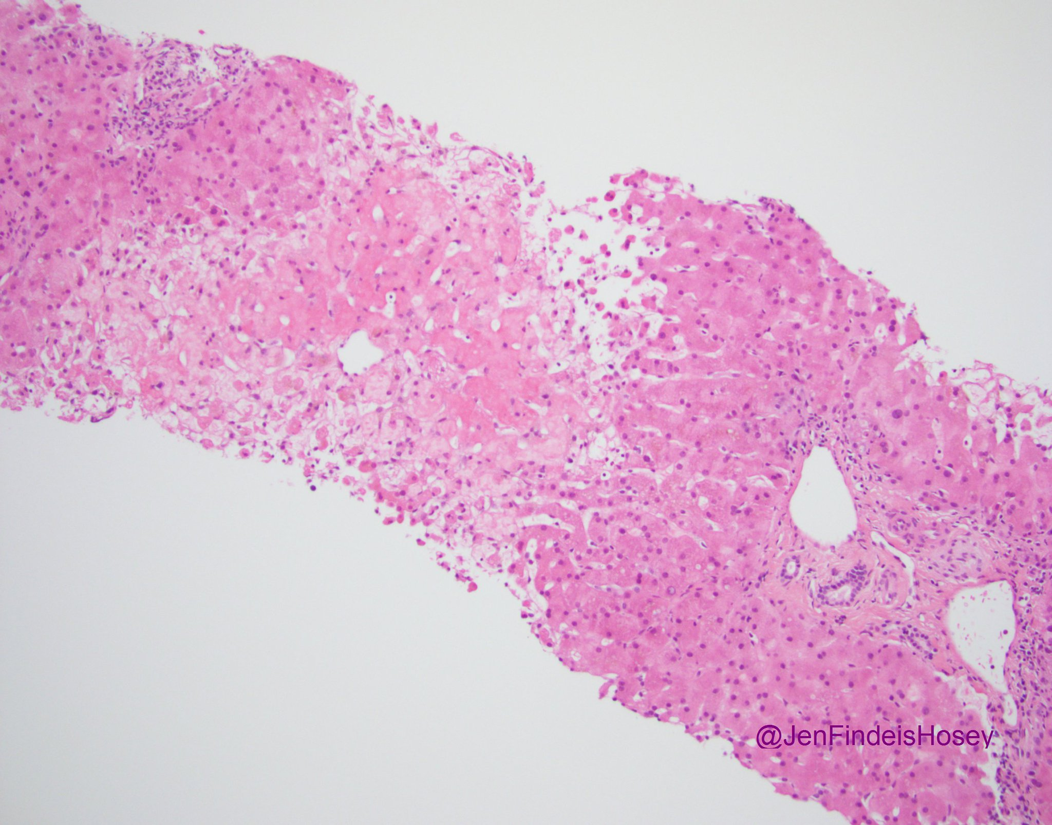 Thankfully not something we see every day. Submassive hepatic necrosis due to acetaminophen.  #GIPath #pathology #pathboards (perivascular zone 3 hepatocyte necrosis!) https://t.co/UuI4aotH68