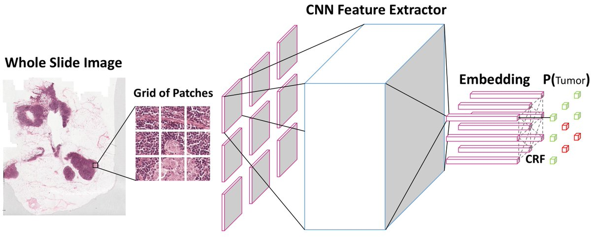 test Twitter Media - Our team is open sourcing NCRF, a #DeepLearning based algorithm for more accurate detection of tumor cells. Read more about it here: https://t.co/1guDoqL0SA #AI #MachineLearning https://t.co/T6vn6ve10h