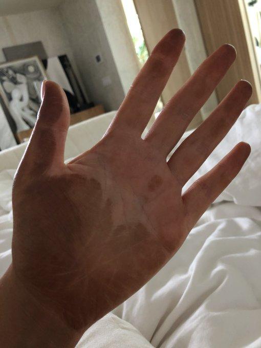 @chrissyteigen: As my spray tan confirms, I seem to always hug myself in my sleep. https://t.co/hO3xt0EhYu