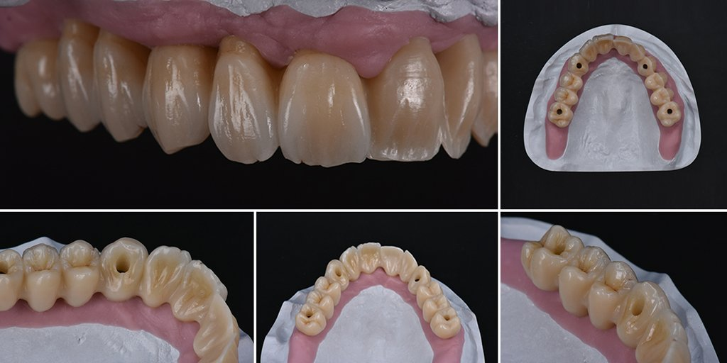 """""""With Zolid HT+ Preshades I have excellent shade control even with minimum #cutback technique!"""" – this is the #Statement of CDT Atshushi Hasegawa from Organ Dental Lab in #Japan after working with our high-translucent #Zirconia We are happy to show you the stunning result… https://t.co/6gbx71a0rV"""