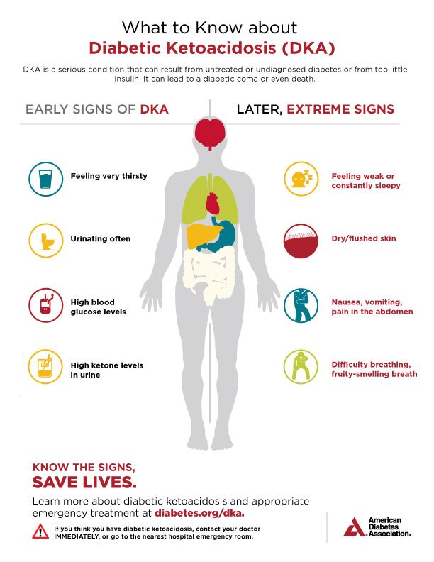 test Twitter Media - Diabetic ketoacidosis (DKA) is an extremely serious #diabetes complication that can lead to coma or even death if left untreated. Symptoms include dehydration, nausea and blurred vision—see your doctor immediately if you or a loved one experience these. https://t.co/jWXcIQySlk