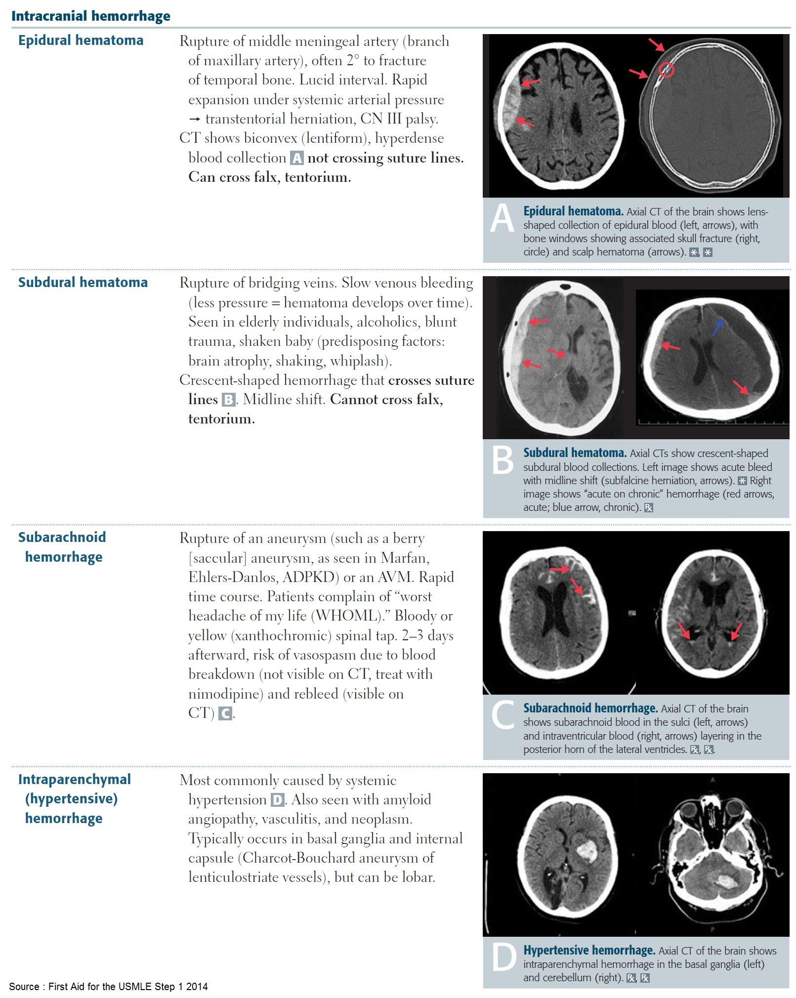 Intracranial Hemorrhages . #meded #foamed #foamrad #neurology https://t.co/U4kzZ2baZE