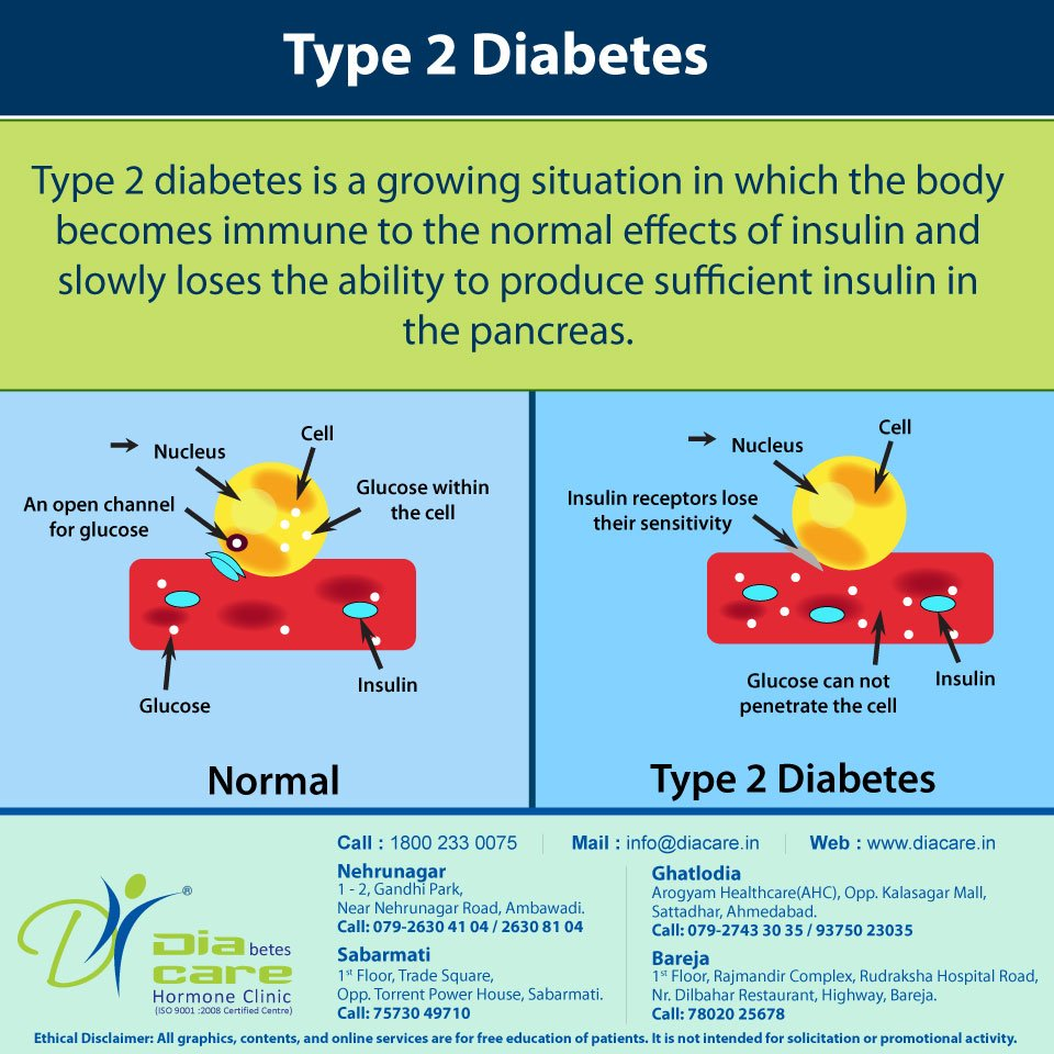 test Twitter Media - What is type 2 diabetes?  #type2diabetes #diabetes #type2 #diabetesawareness #diacare #ahmedabad #drbanshisaboo https://t.co/Q5pSGFRoQW