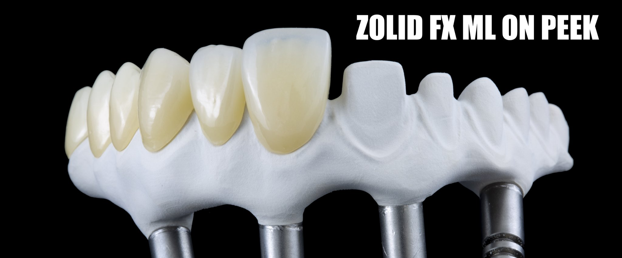 New white #PEEK by @JUVORA_Dental with #Zolid_fx by @Amann_Girrbach done on #Motion2 is the best choice of screw retained bridge on all on four. https://t.co/KB9pSbLgMP