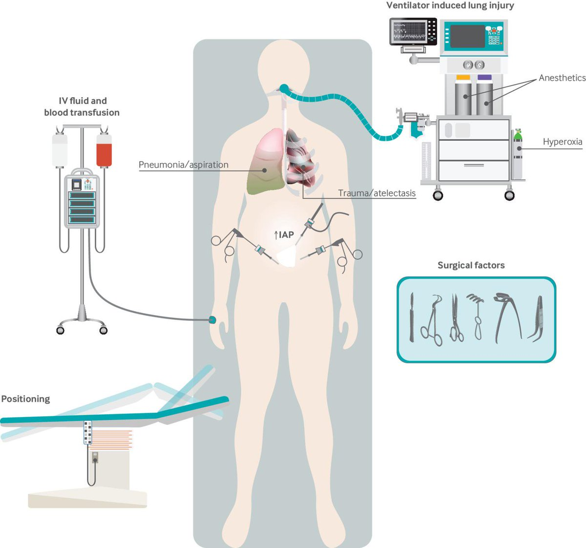test Twitter Media - Figure showing the risk factors for perioperative lung injury. What are the forms of perioperative lung injury and the strategies to prevent it? #BMJEducation article explains #MedEd https://t.co/wTy3ADvQ3U https://t.co/CGNrBjnedf