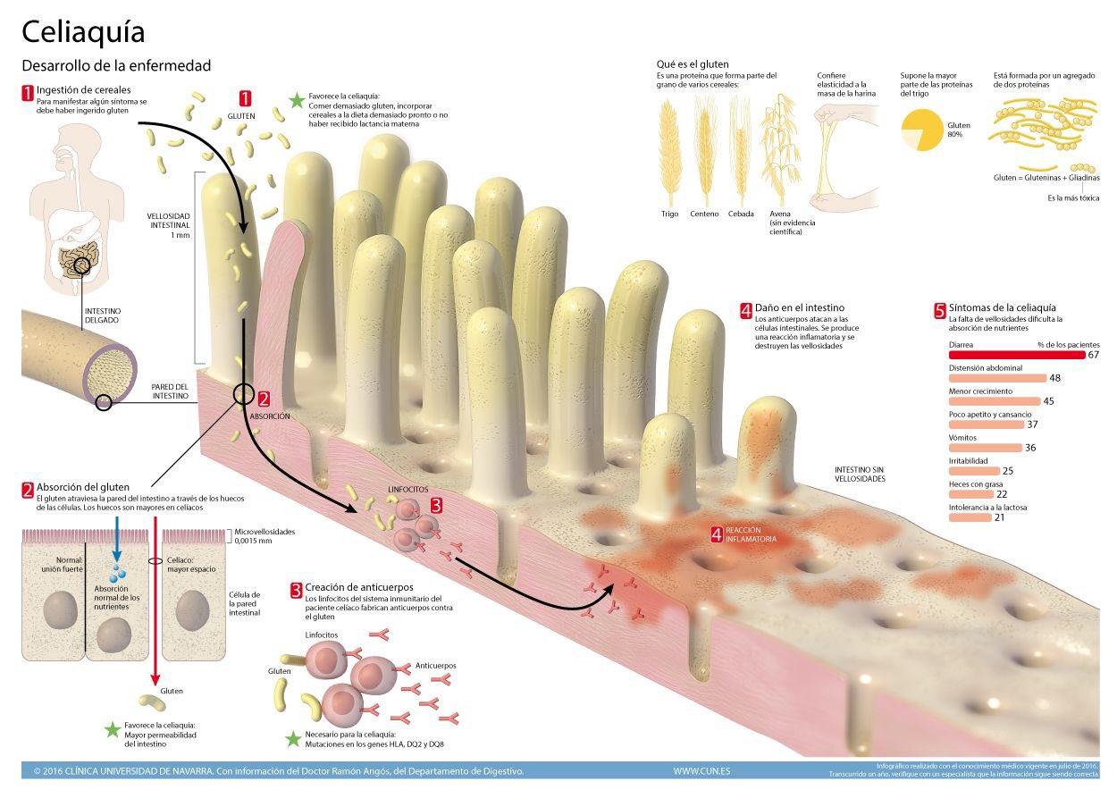 La enfermedad celiaca no es una alergia ni una intolerancia #microMOOCCA2 Se trata de una respuesta inmune específica dirigida contra el epitelio intestinal. Es más compleja, probablemente autoinmune desencadenada por la presencia de gluten en el intestino provoca su inflamación https://t.co/XlHzvNwxFQ