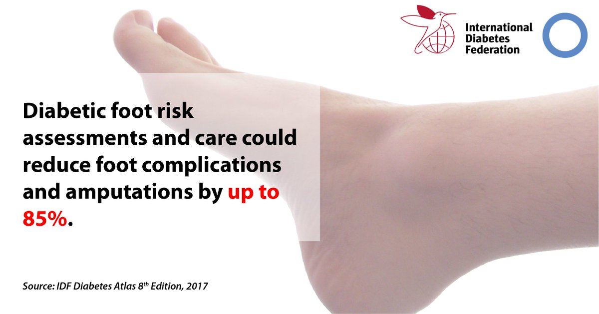test Twitter Media - Foot complications are among the most serious and costly for people with #diabetes, accounting for up to one third of all #diabetes costs. Find out more https://t.co/i9P0M9y5tq https://t.co/nbWB23mYXg