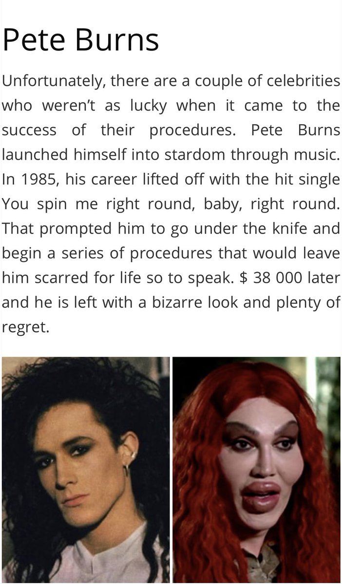 Poor Pete burns. My gosh. He was so cute! rdkGm7fwwS