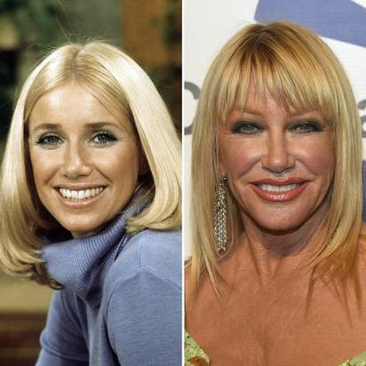 Happy 72nd Birthday to Suzanne Somers! The actress who played Chrissy Snow in Three s Company.