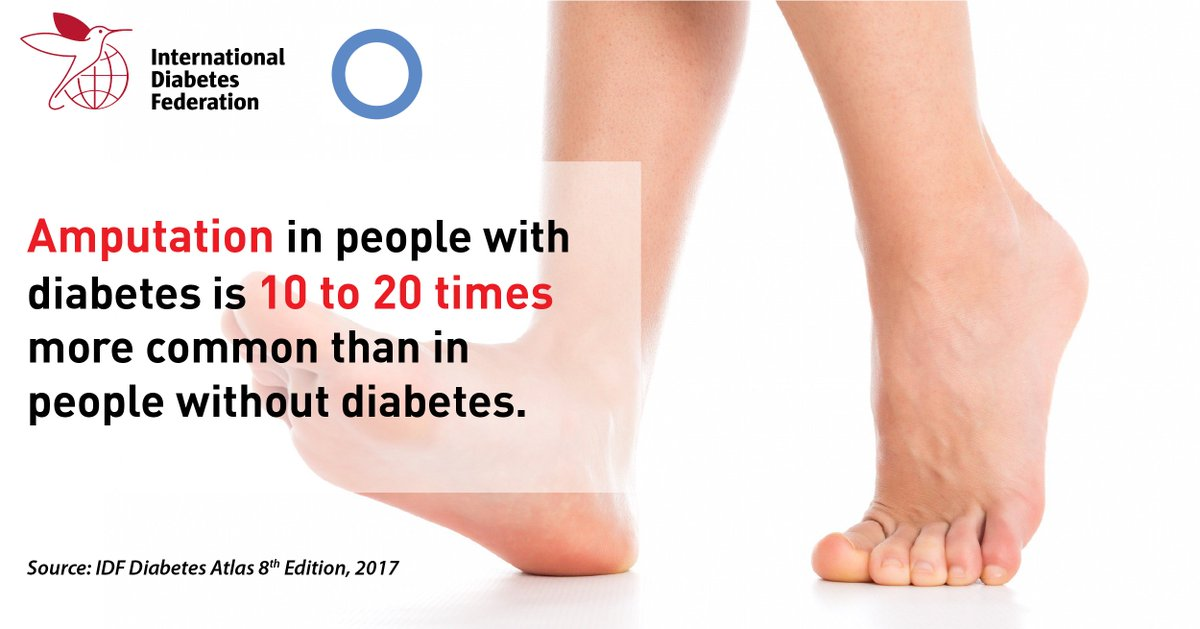 test Twitter Media - Diabetic foot is one of the most serious and costly #diabetes complications. Screening and early treatment is vital to stop its progression https://t.co/i9P0M9y5tq https://t.co/sEwrn2PeRb