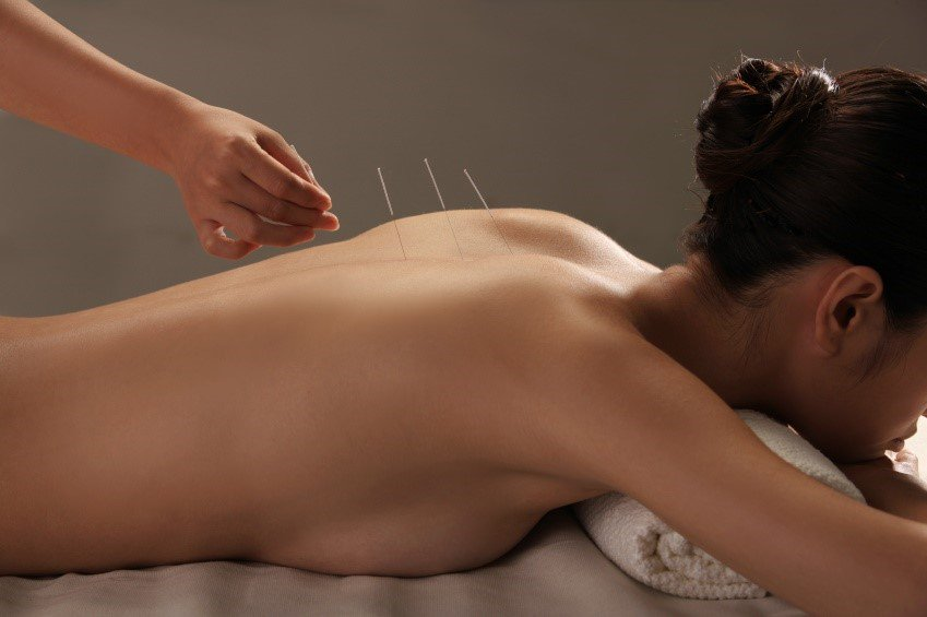 test Twitter Media - Have you tried acupuncture before? We break down what it is and how it's helpful https://t.co/l0It7iwaRm https://t.co/6NwAiDNq7a