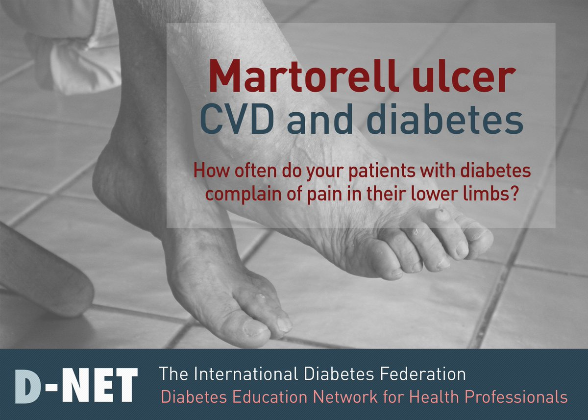 test Twitter Media - A martorell ulcer is a painful ulcer of the lower leg that develops as a result of poorly controlled high blood pressure, and is often linked to poor #diabetes management. Join the current discussion on #DNET and learn more about this diabetes complication https://t.co/nJLteoZtVI https://t.co/eSv68oM1cy