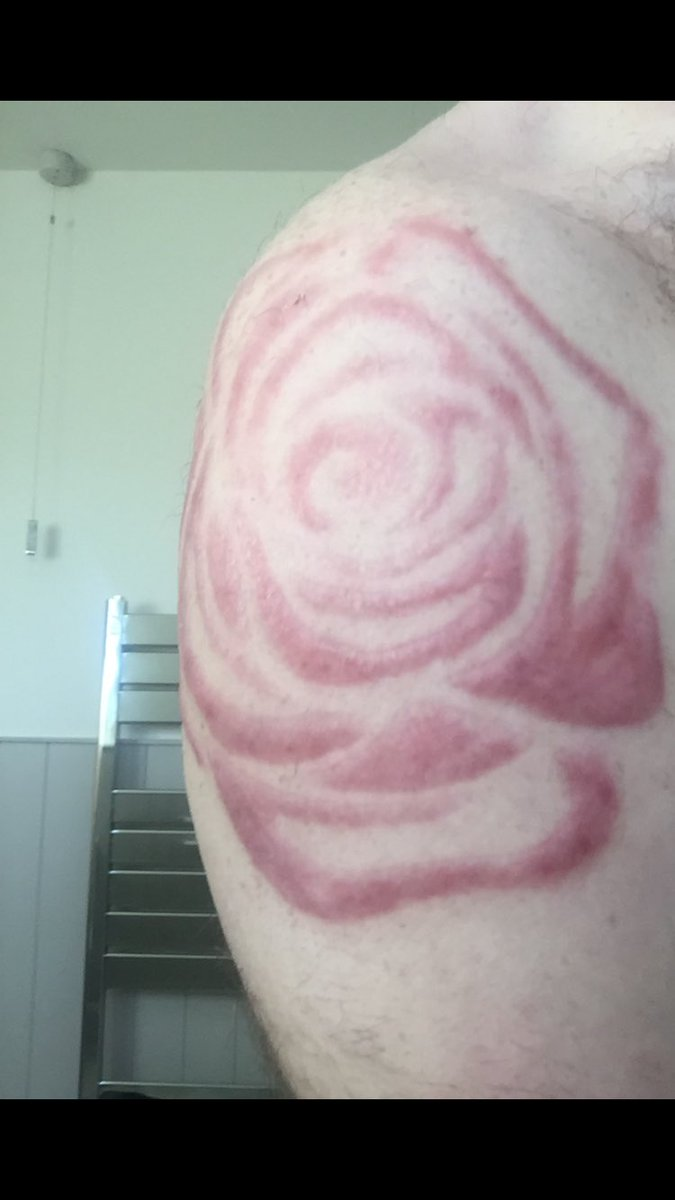 Scarification healing nicely 🔪   #Stage2 #Bodyart 💉 https://t.co/6QWfFz3KFo