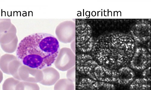 test Twitter Media - Researchers from @HelmholtzMunich and the @LMU_Uniklinikum show that #deeplearning algorithms perform similar to human experts when classifying blood samples from patients suffering from #acutemyeloidleukemia. #MedicalAI https://t.co/WkarLW2d4b https://t.co/mbbJBrglSK