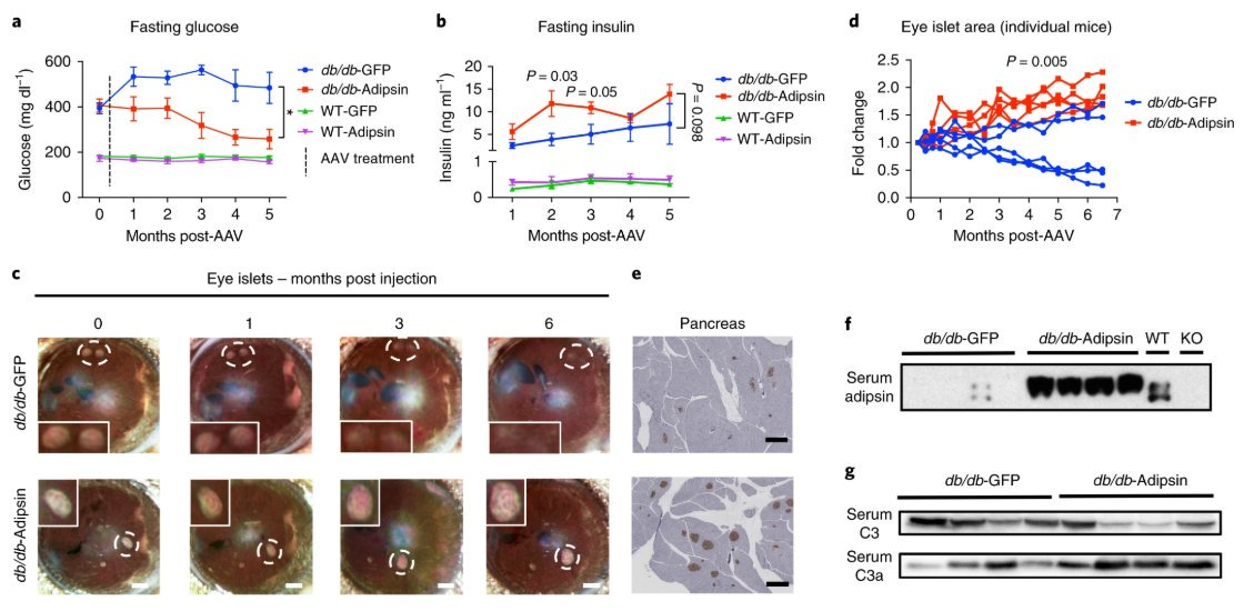 test Twitter Media - Targeting the adipokine adipsin and its downstream pathway may provide an approach for preservation of beta cell loss in type 2 #diabetes https://t.co/mYAh7Rpdrd #DiabetesAwarenessMonth https://t.co/zxDOaEYVWB