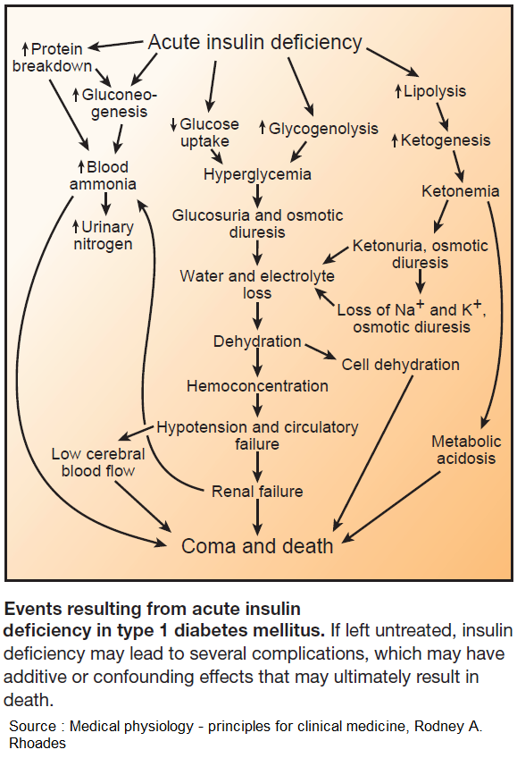 Events Resulting from Acute Insulin Deficiency in Type 1 Diabetes Mellitus . #meded #foamed #usmle #medtwitter https://t.co/lHs3MbaQVU