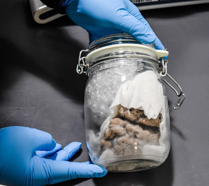 NO BRAINER—@CBPGreatLakes officers seized a human brain arriving in an international mail shipment at the Blue Water Bridge. The importation of human tissue is regulated by @CDCgov to ensure it's free of infectious diseases and other hazards: