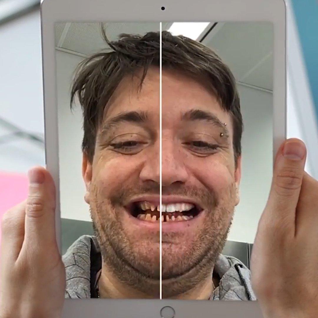 This #virtual mirror lets you try on different smiles #AugmentedReality #AR #Dentists #HealthTech #HealthIT V /@techinsider @MargaretSiegien @PawlowskiMario @HealthcareLdr @CelineDarnet_ @pradeeprao_