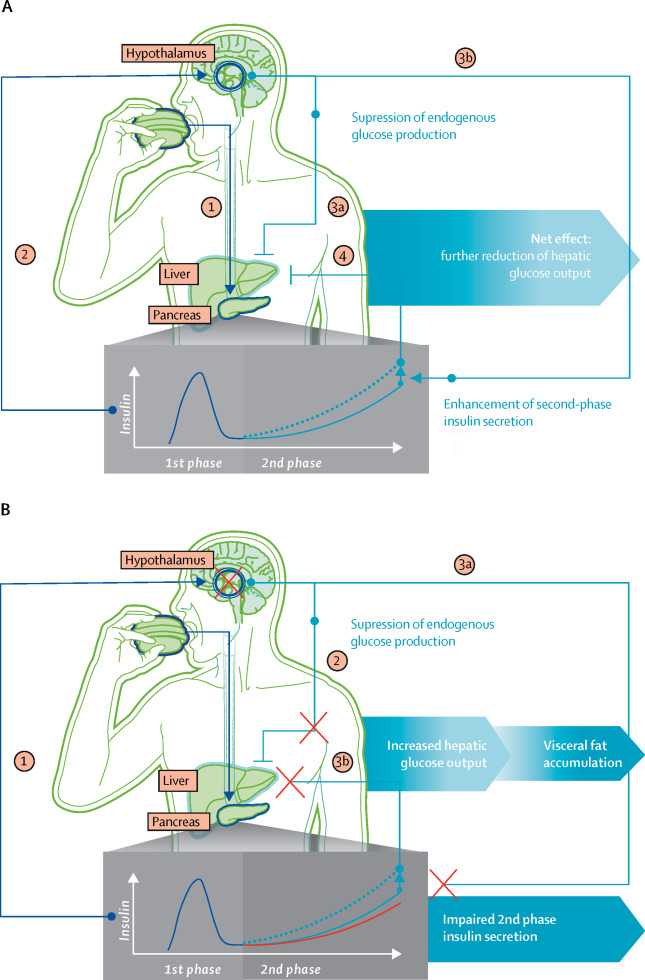 """test Twitter Media - In the June Issue - Review Series on #diabetes and #brain health:  """"#CNS pathways of #Insulin action in the control of #metabolism and #Food intake""""  https://t.co/8aRzxKLdPF https://t.co/ubu4uj11sN"""