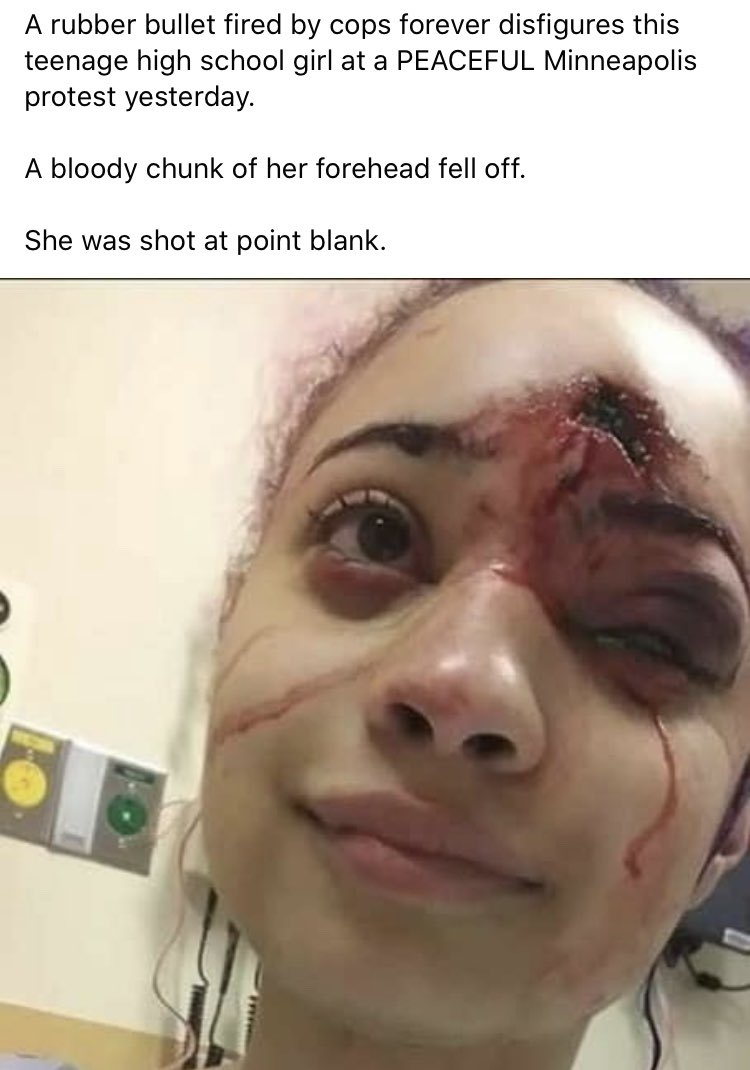 This is heartbreaking and so disturbing. Does anyone know how I can get in contact with her? I would love to help her with her medical care if she needs it.