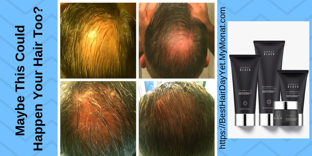 Men – Maybe this could happen to Your HAIR too! Healthy Hair will look GREAT on YOU!      YOUR BEST HAIR DAY YET!   #men #male #guys #hairloss #regrow #newhair #hair #thisworks #new #yourhair #besthairdayyet #balding #baldspot #MONAT