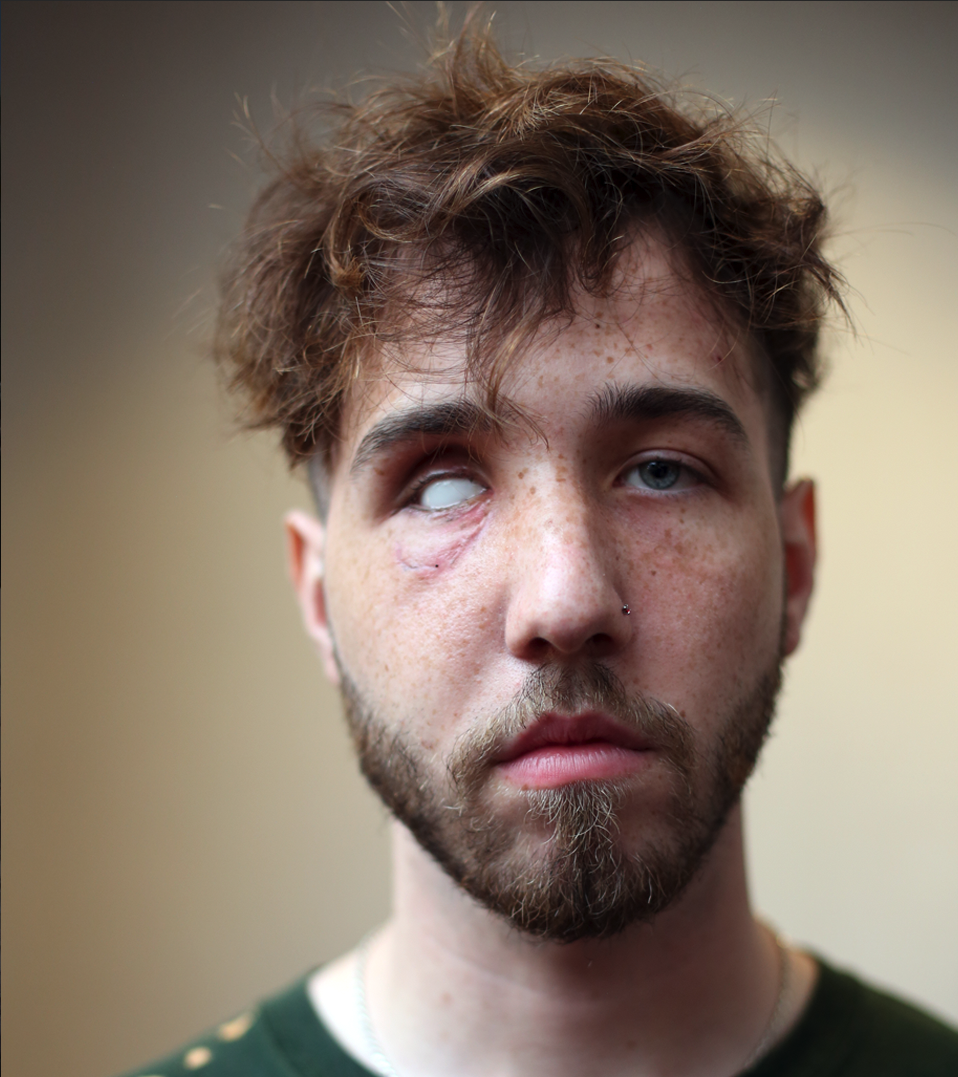Thread on one case from our @washingtonpost video investigation   1/ This is 21-year-old Balin Brake of Fort Wayne, Indiana. Brake lost his right eye when he was shot in the face with a police gas canister at a protest in downtown Fort Wayne on May 30.