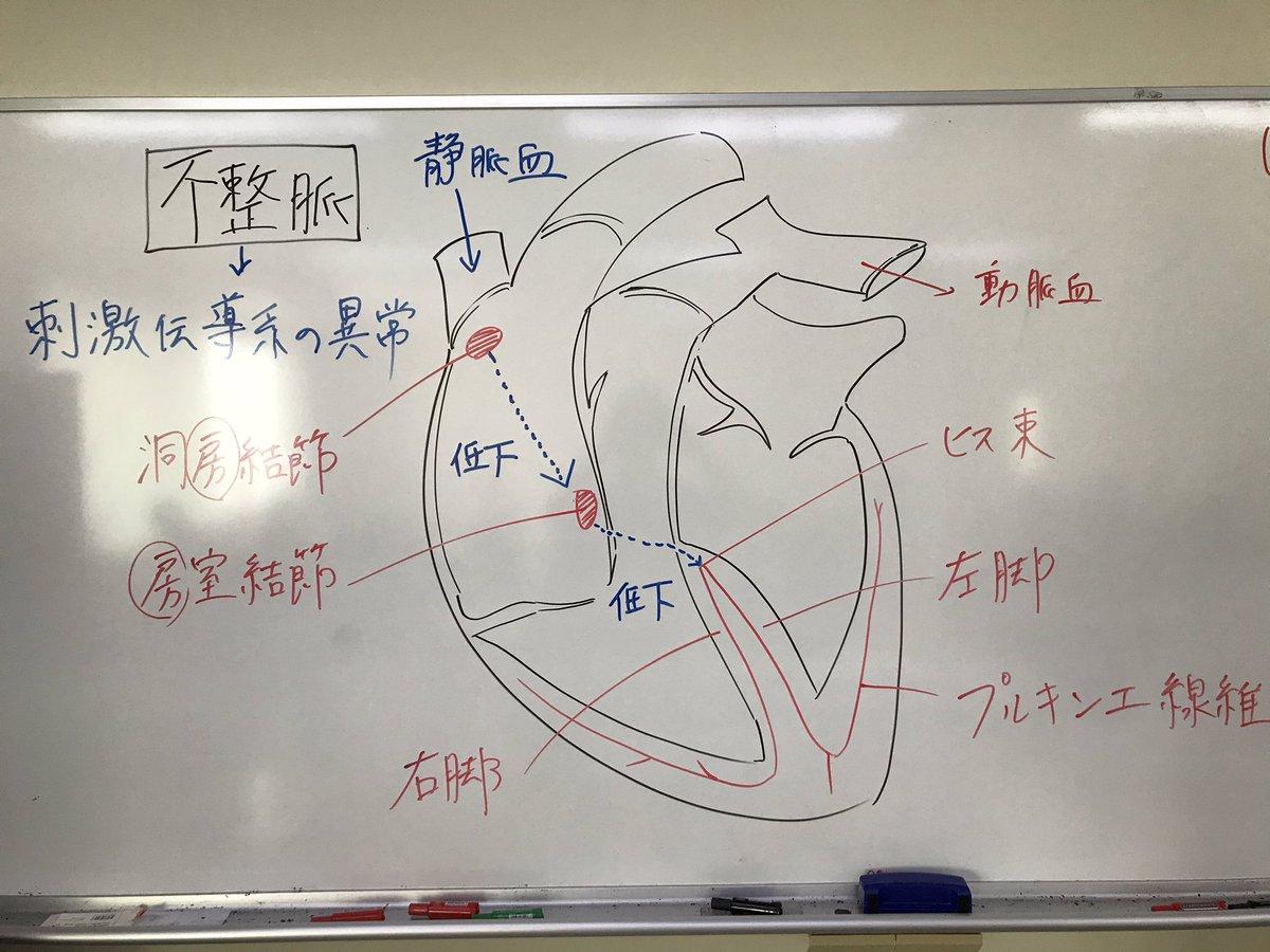 本日は当校作業療法学科長櫻井の不整脈の授業の板書内容です!異常なくらいイラストが上手ですよね?!笑笑 #リハビリ #理学療法 #作業療法 #OC