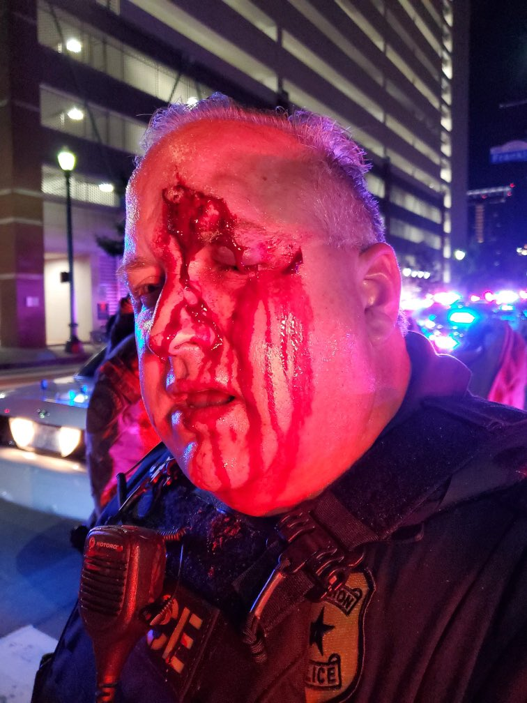 Today there is a grant before Houston City Council to provide protective helmets to all our officers to prevent injuries like this sustained by one of our Sgts during protests. Getting reports certain council members will be voting no, truly a sad day. Houston is better than this