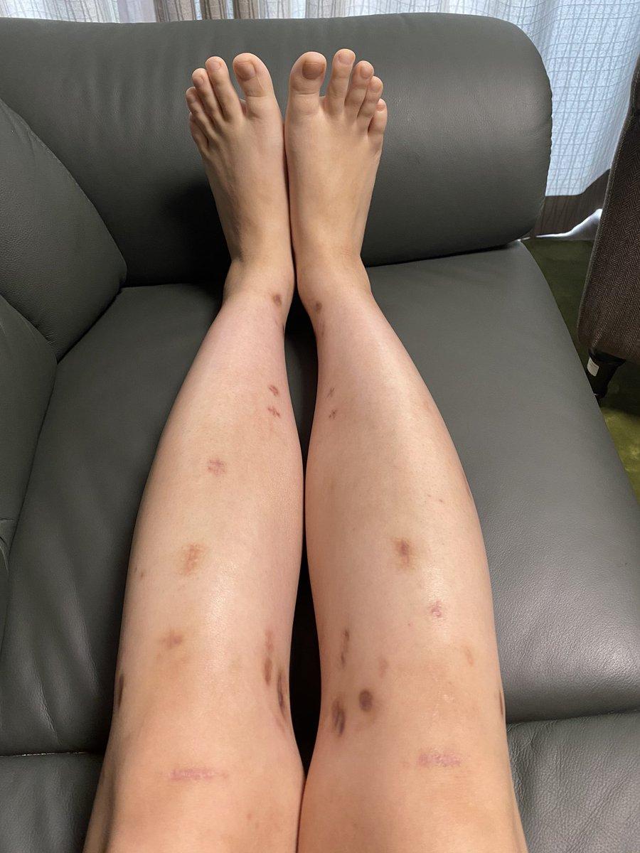痛み止め コンプ 傷跡 リアルジャックハンマー wwwwに関連した画像-03