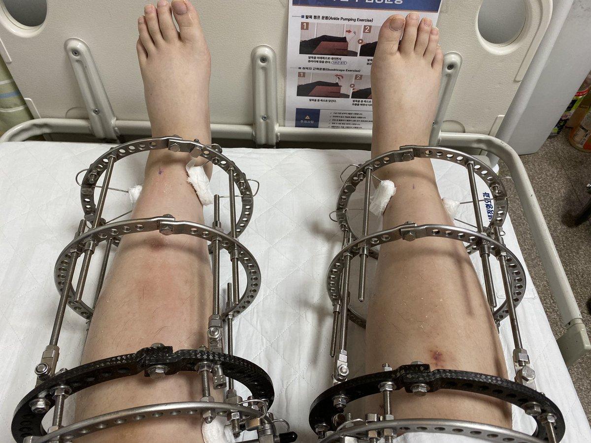 痛み止め コンプ 傷跡 リアルジャックハンマー wwwwに関連した画像-02
